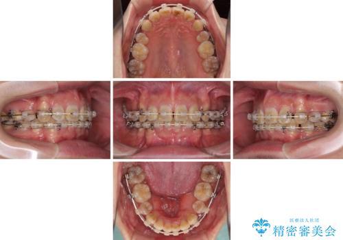口元の突出感と叢生 ワイヤー装置による抜歯矯正の治療中