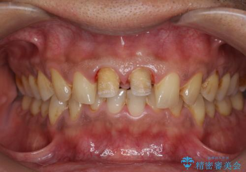歯ぐきからの出血 膿が出る 前歯根管・セラミック治療の治療中