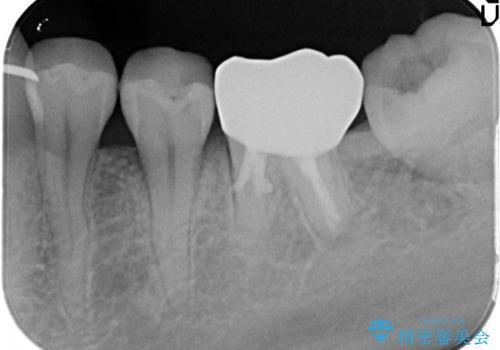 目立つ銀歯を白くしたい セラミック治療の治療後