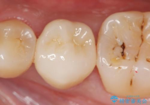 [ 放置し内部で大きく進行した虫歯 ]  神経を守るセラミック治療の治療後