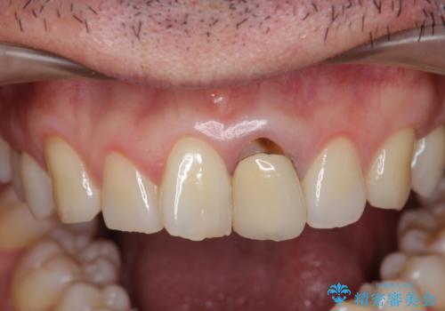 [ジルコニアクラウン] 前歯をきれいにの治療前