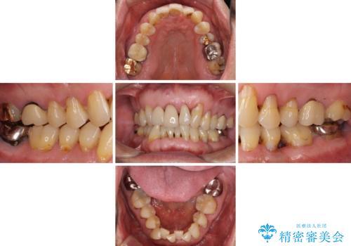 矯正治療と歯周外科処置を併用した審美歯科治療の治療前