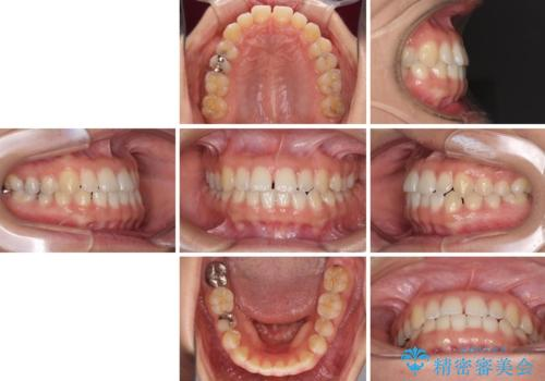 前歯の隙間を閉じたい 短期間でのワイヤー矯正の治療前
