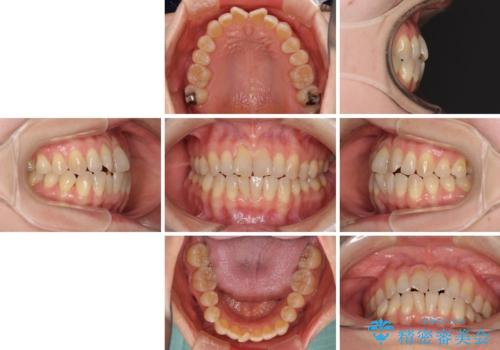 前歯の叢生と切端咬合 インビザラインによる矯正治療の治療前