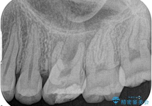 奥歯の根管治療の治療前