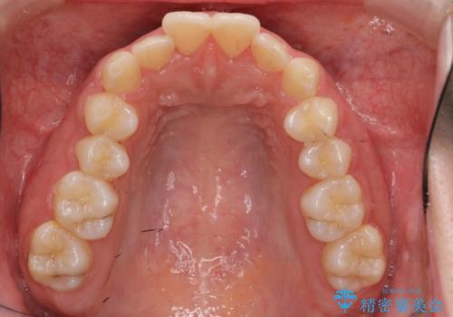 マウスピース矯正 下顎前歯のがたつきの改善の治療前