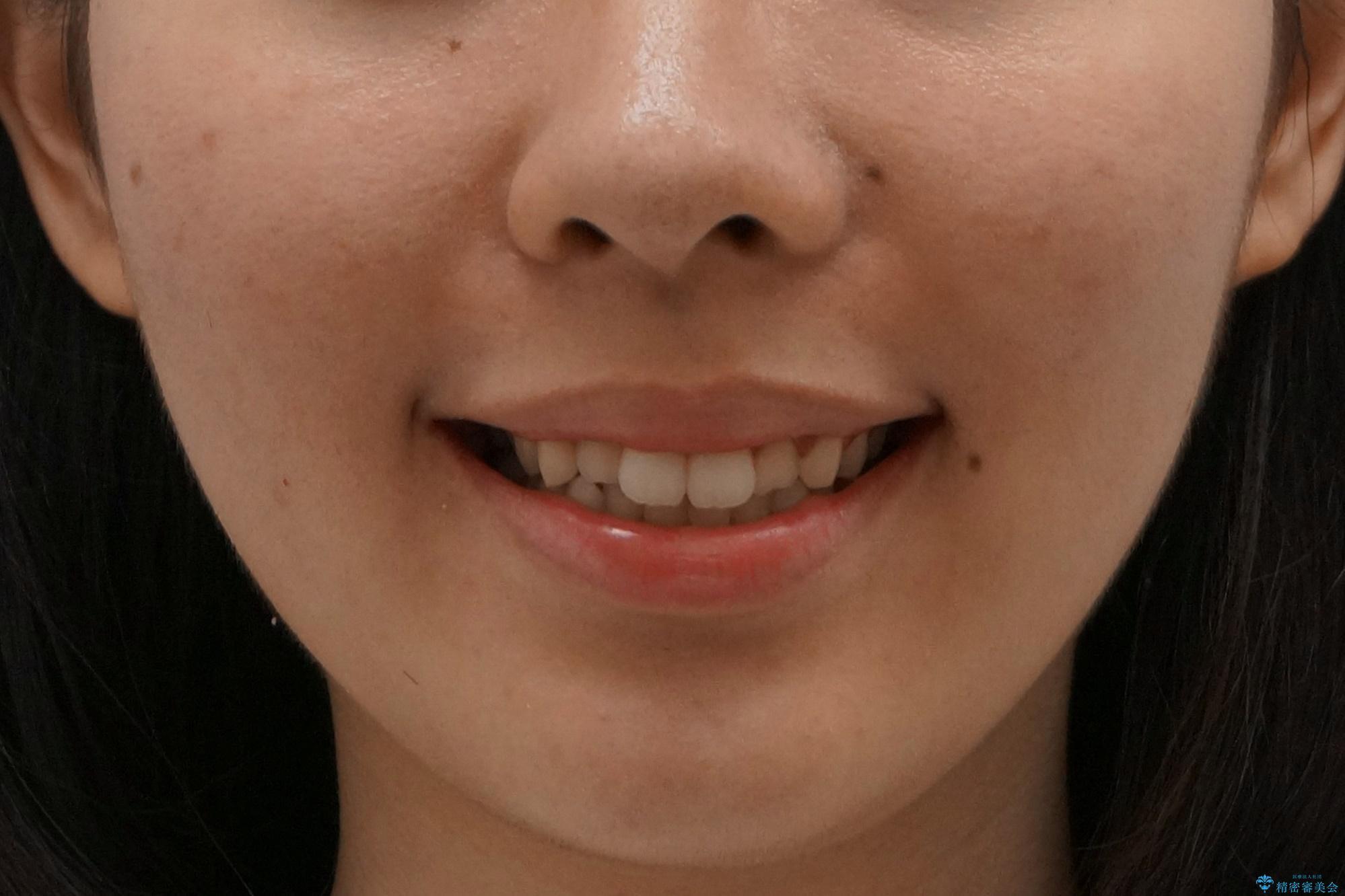 マウスピース矯正 下顎前歯のがたつきの改善の治療前(顔貌)