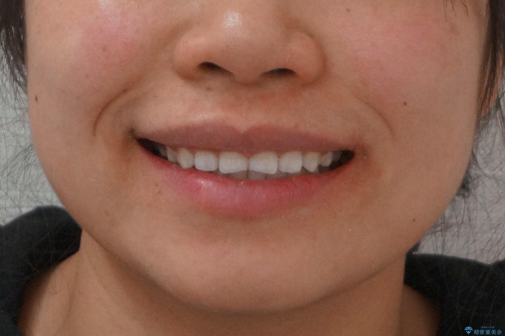 インビザライン 気になるすきっ歯の改善の治療後(顔貌)