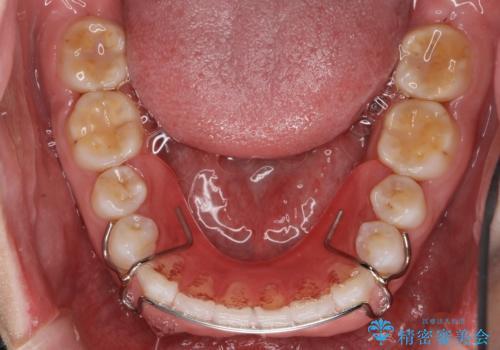 インビザライン 気になるすきっ歯の改善の治療後