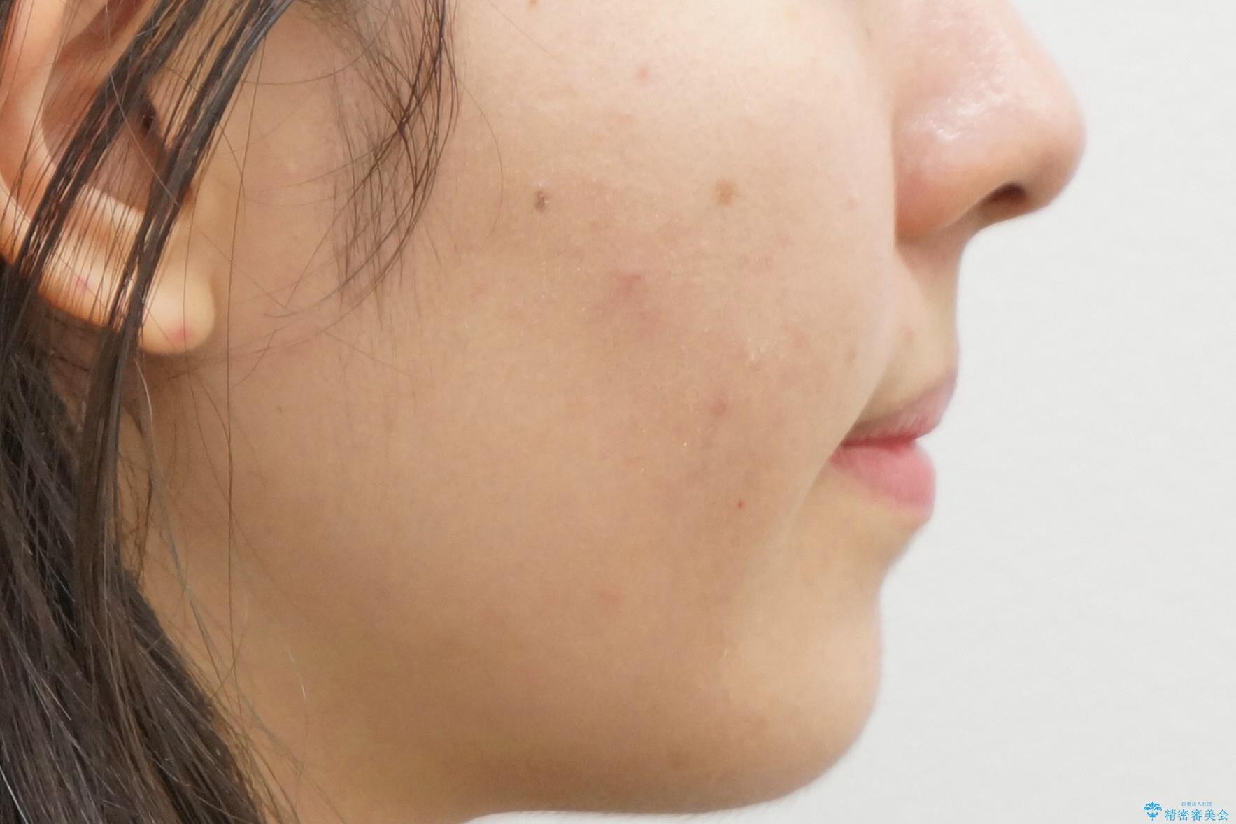 マウスピース矯正 下顎前歯のがたつきの改善の治療後(顔貌)