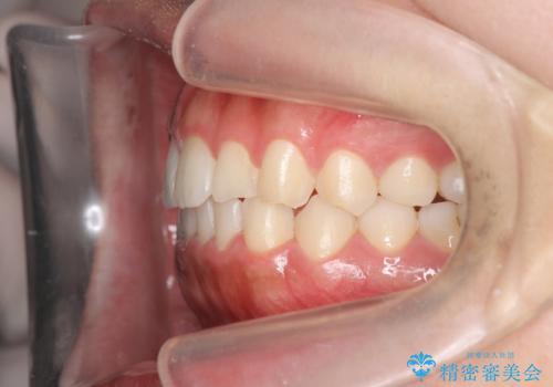 マウスピース矯正 下顎前歯のがたつきの改善の治療後