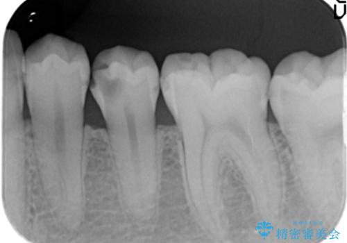 [ 放置し内部で大きく進行した虫歯 ]  神経を守るセラミック治療の治療前