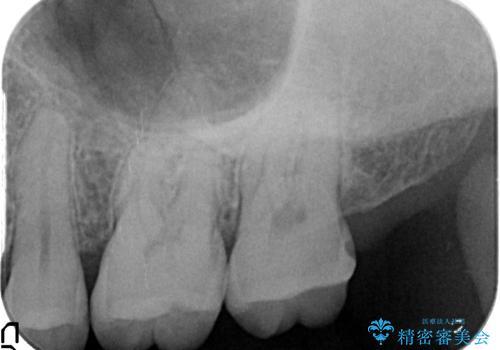 オールセラミッククラウン 痛くて咬めない歯の治療の治療前
