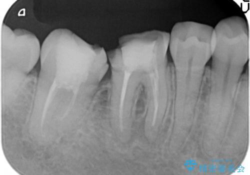 オールセラミッククラウン 欠けてしまった奥歯の治療の治療前