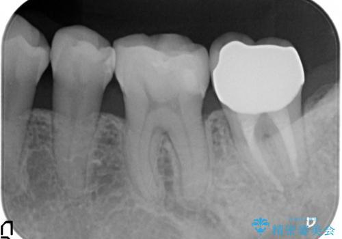 オールセラミッククラウン 痛みが引かない歯の治療の治療後