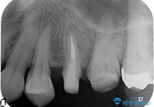 放置し崩壊した歯 セラミック治療による咬合機能回復の治療中