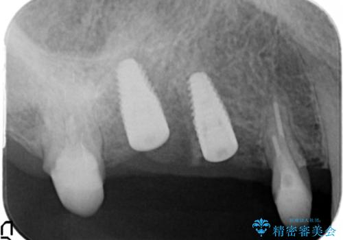 [ 歯牙破折 ]  インプラントによる咬合機能回復の治療中