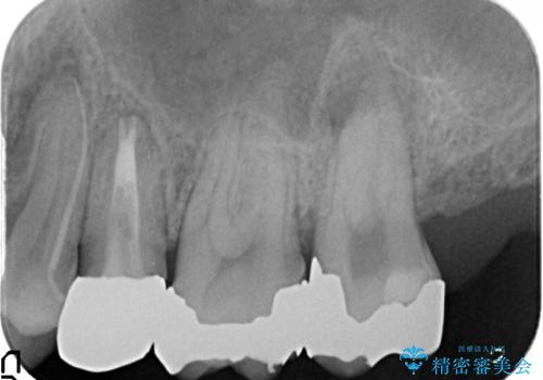 オールセラミッククラウン 歯茎にできた膿の出口(フィステル)の治療の治療前