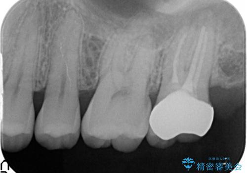オールセラミッククラウン 痛くて咬めない歯の治療の治療後