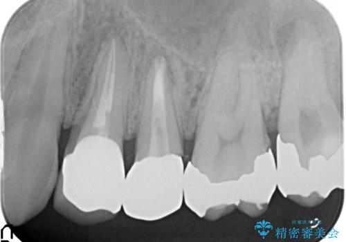 オールセラミッククラウン 歯茎にできた膿の出口(フィステル)の治療の治療後