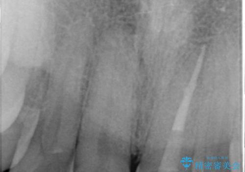 [ジルコニアクラウン] 前歯をきれいにの治療中
