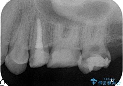 オールセラミッククラウン 痛みでものが咬めない歯の治療の治療前