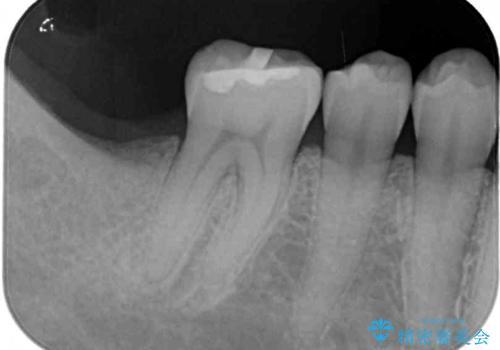 抜歯されたままの奥歯 ストローマンインプラントによる欠損補綴治療の治療前