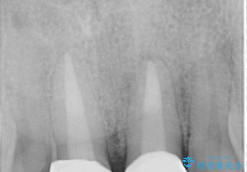 歯ぐきからの出血 膿が出る 前歯根管・セラミック治療の治療後