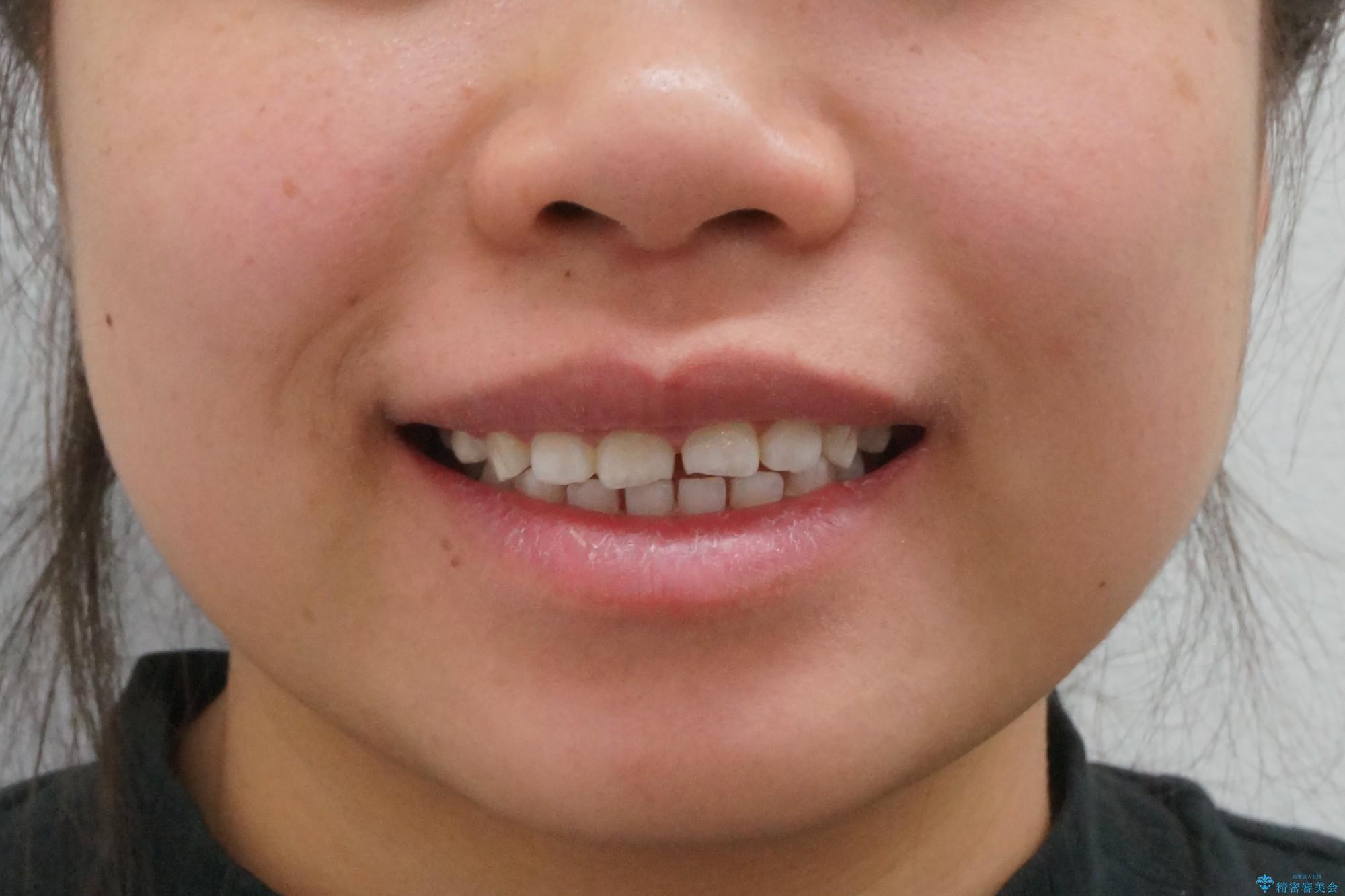 インビザライン 気になるすきっ歯の改善の治療前(顔貌)