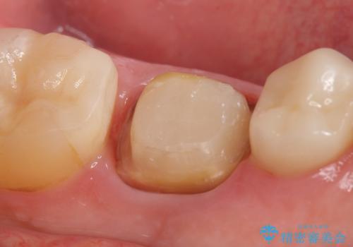 オールセラミッククラウン 銀歯を白くの治療中