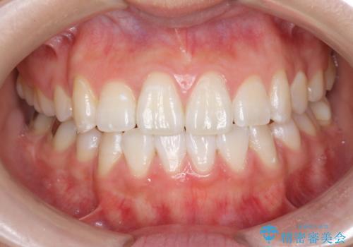 オフィスホワイトニングで歯を白く!の治療後