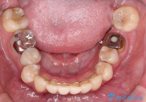 目立つ銀歯を白くしたい セラミック治療の症例 治療前
