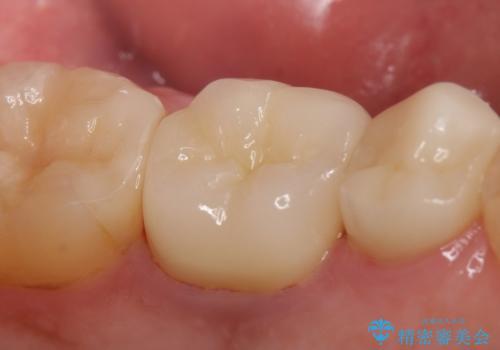 オールセラミッククラウン 銀歯を白くの治療後