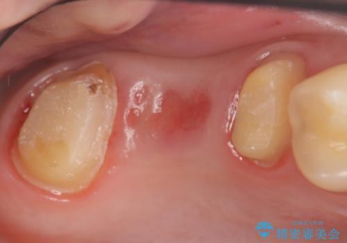 オールセラミッククラウン 奥歯のブリッジの治療中