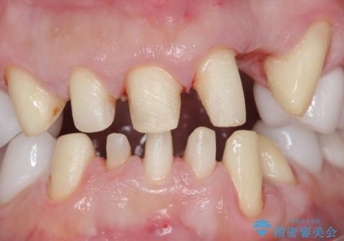 歯並びをきれいにしたい、歯を真っ白にしたい 40代男性の治療中