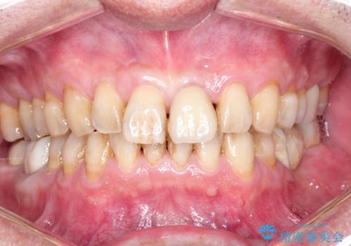ステインによる歯の着色の症例 治療前