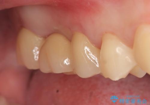 オールセラミッククラウン 奥歯のブリッジの治療後