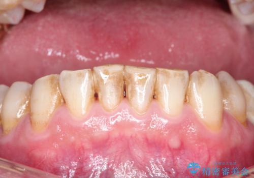 ステインによる歯の着色の治療前