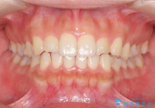 マウスピース矯正 下顎前歯のがたつきの改善の治療中