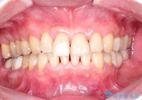 ステインによる歯の着色の症例 治療後