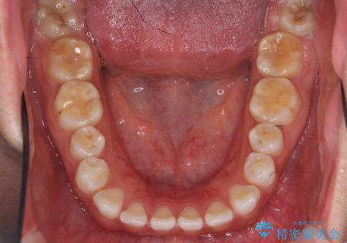 インビザライン 気になるすきっ歯の改善の治療前