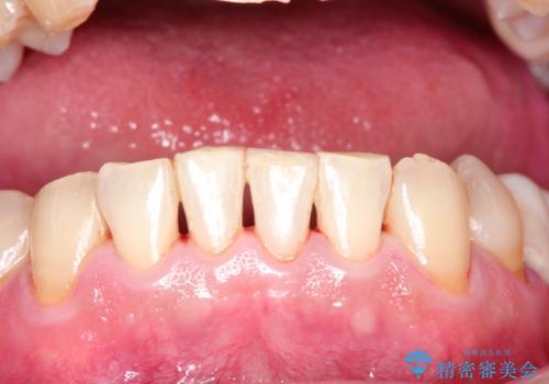 ステインによる歯の着色の治療後