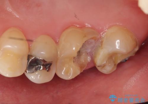 オールセラミッククラウン 奥歯のブリッジの治療前