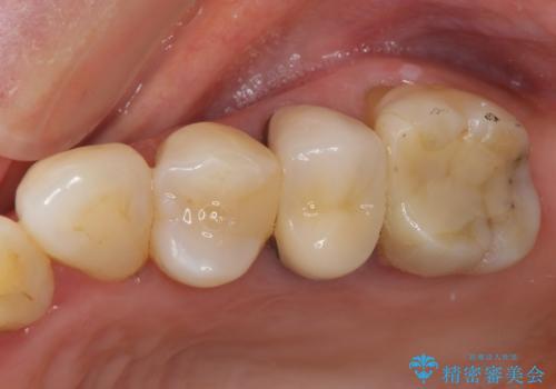 歯肉の退縮により歯根が見える オールセラミッククラウンによる審美歯科治療の治療前