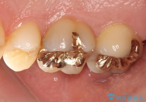 奥歯のゴールドインレーによる虫歯治療の症例 治療後