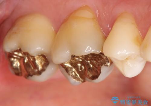 奥歯のゴールドインレーによる虫歯治療の治療後