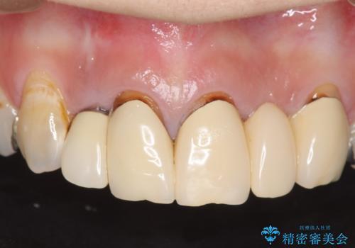 オールセラミッククラウン 気になる歯茎と被せ物の隙間の改善の治療前