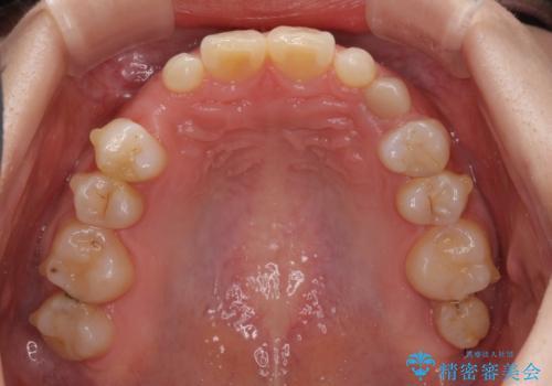 欠損と残存乳歯 矯正治療とインプラント治療の治療中