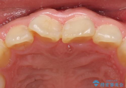 オールセラミッククラウン 長さが気になる前歯の改善の治療前