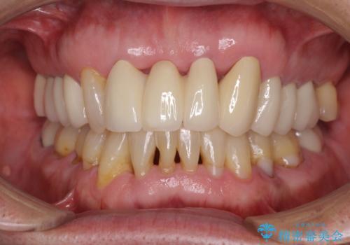 矯正治療と歯周外科処置を併用した審美歯科治療の症例 治療後